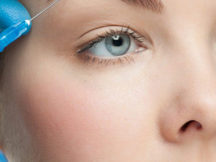 Botox för ögonbrynslyft
