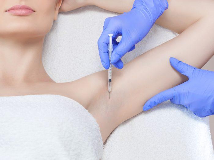 botox i armhålan
